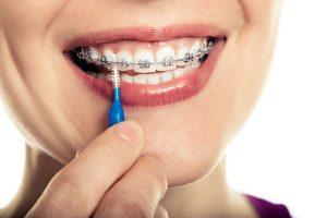تمیز کردن دندان ارتودنسی شده