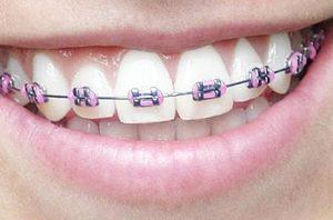 ارتودنسی با براکت های سرامیکی و همرنگ دندان